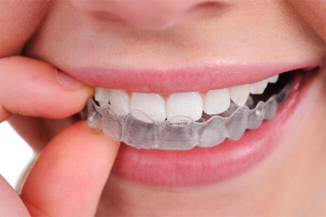 Oral Flossing
